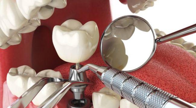 Diş implantı yaptırmadan önce bilmeniz gerekenler